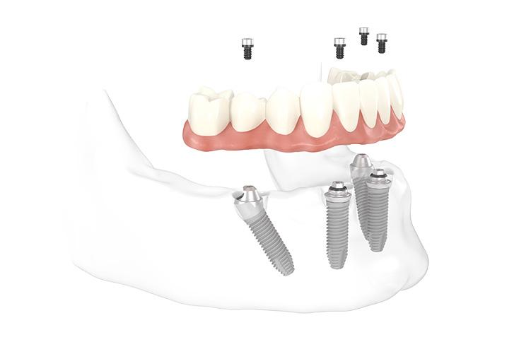 """Modell für die Behandlungsmethode """"Feste Zähne an einem Tag"""" in Innsbruck."""