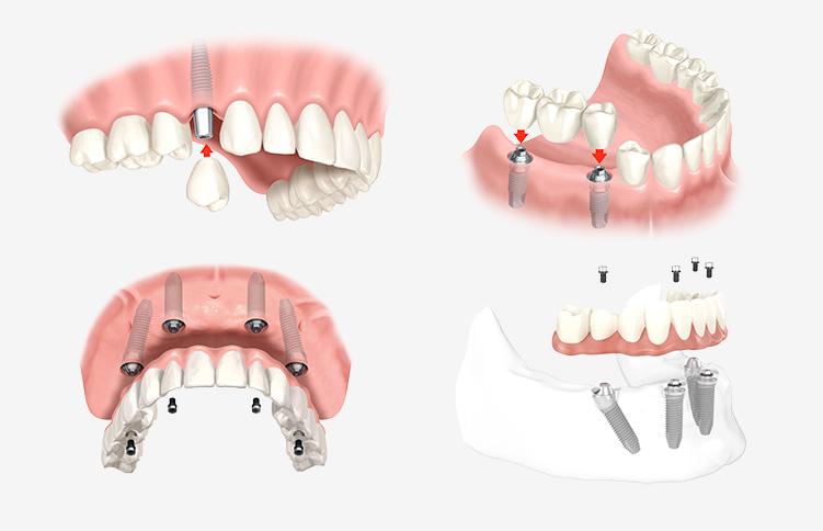 Modelle für die Möglichkeiten mit Zahnimplantaten aus Innsbruck.