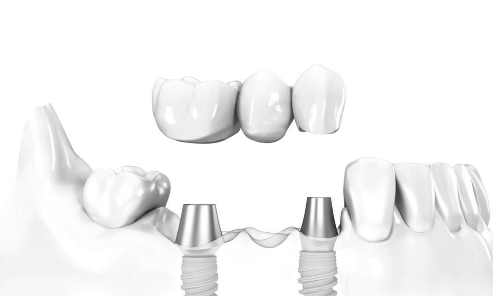Eine Brücke mit mehreren Kronen wird auf zwei Zahnimplantate geschraubt.