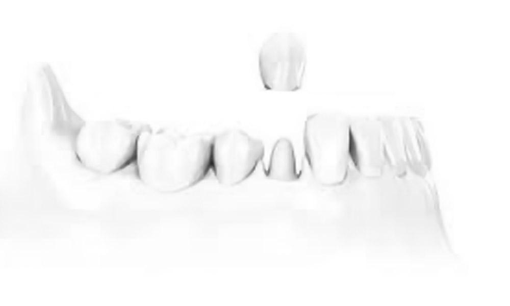 Zahnprothetik aus Innsbruck für festen und gesunden Biss mit Zahnersatz.