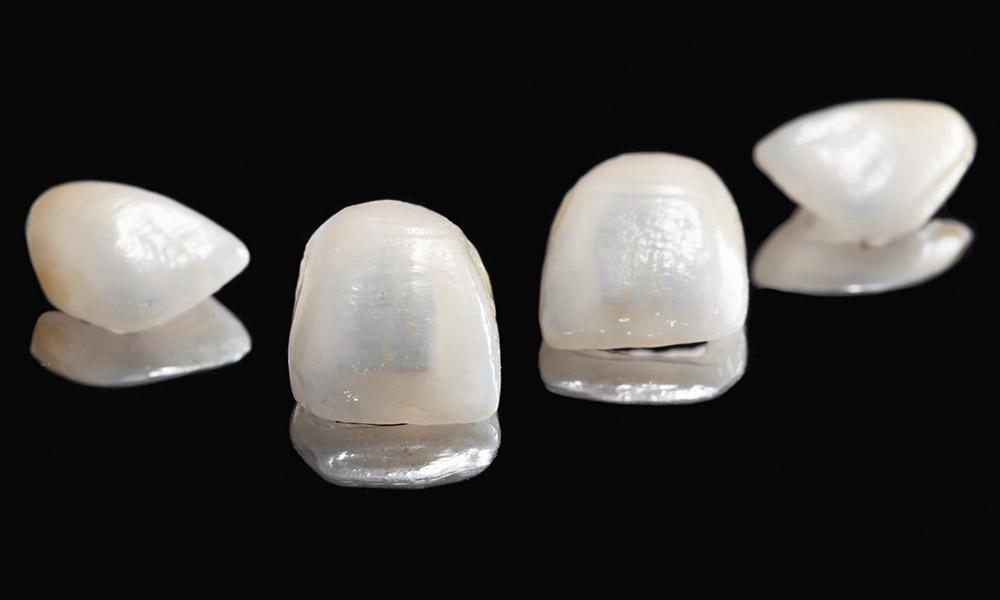 Zahn-Veneers aus Innsbruck sind so dünn wie eine Kontaktlinse.